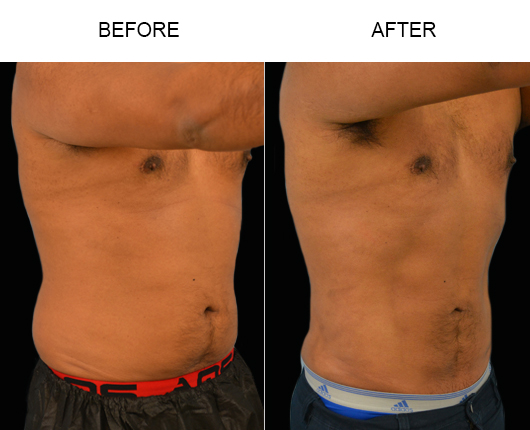 Before & After Male Lipo