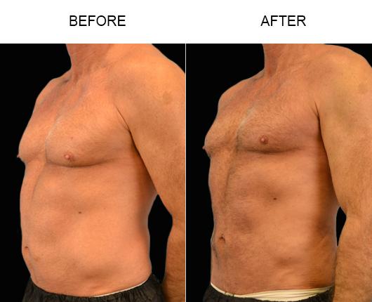 Male Lipo Results