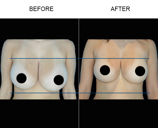 BreastTite/Thermibreast Before And After