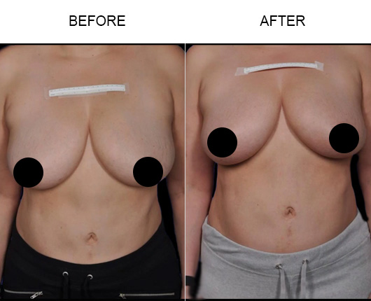 BreastTite/Thermibreast Before & After