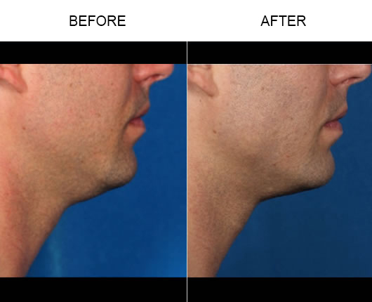 Kybella Treatment Results