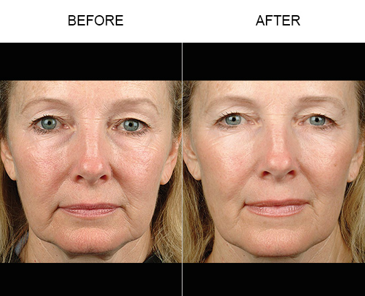 Thermage Facial Treatment Before And After