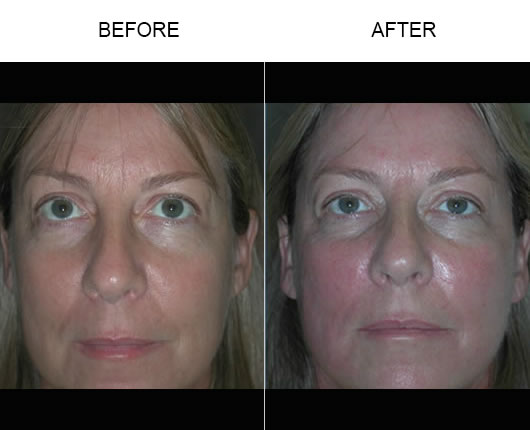 Thermage Facial Treatment Before & After