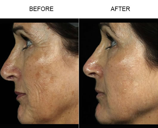 Before And After Fraxel Laser Treatment