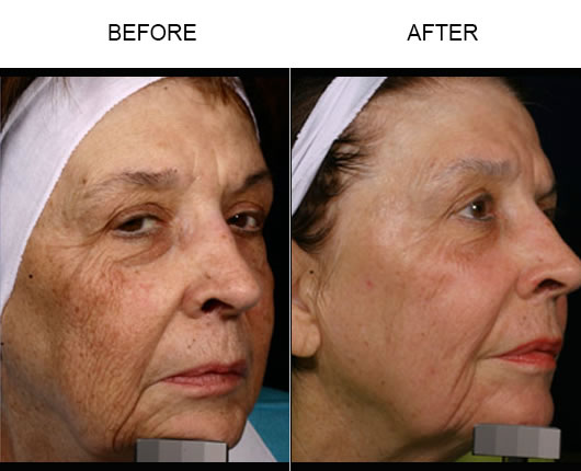 Before & After Fraxel Laser Treatment