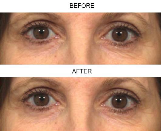 Fraxel Laser Before & After