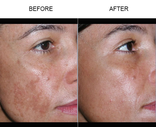 Fraxel Skin Resurfacing Before And After