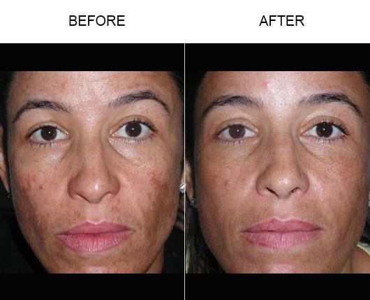 Before & After Fraxel Laser Resurfacing