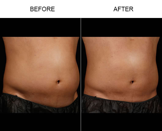 Sculpsure™ Before And After