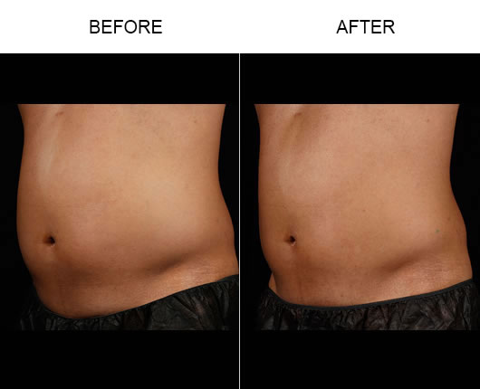 Before And After Sculpsure™