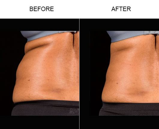 Sculpsure™ Results
