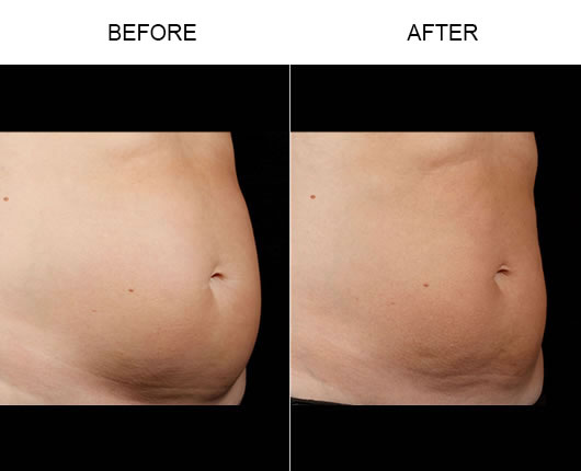 Sculpsure™ Before & After