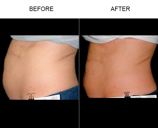 Liposonix Before And After