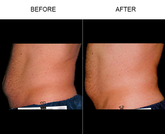Before & After Liposonix