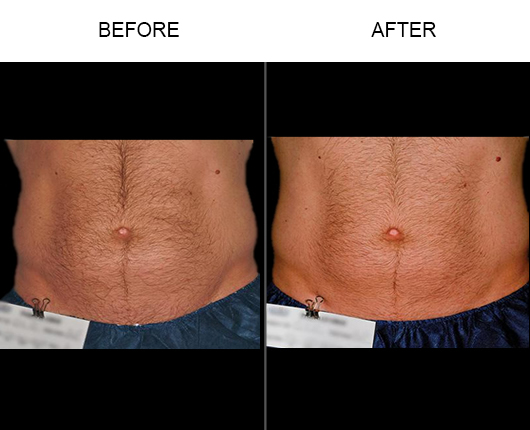 Liposonix Treatment Before And After