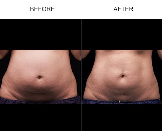 Liposonix Treatment Before & After