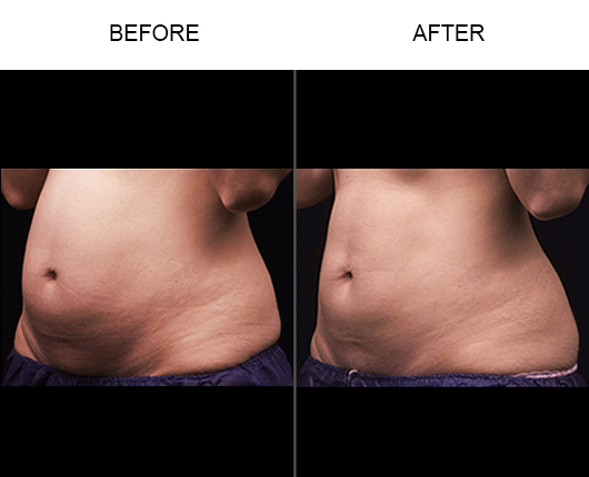 Before & After Liposonix Treatment