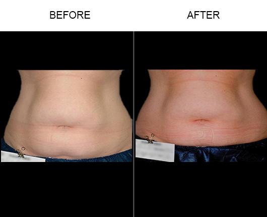 Before And After Liposonix®