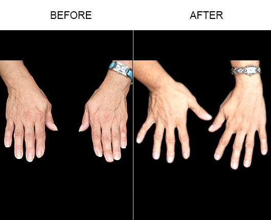 NaturalFill Hand Rejuvenation Before And After