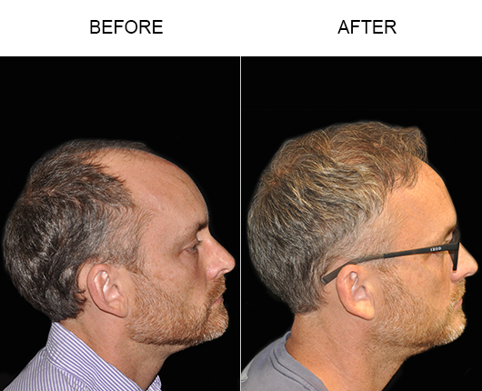 Hair Restoration Before And After In Florida
