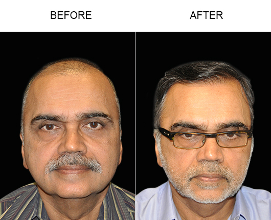 Hair Restoration Before & After In Florida
