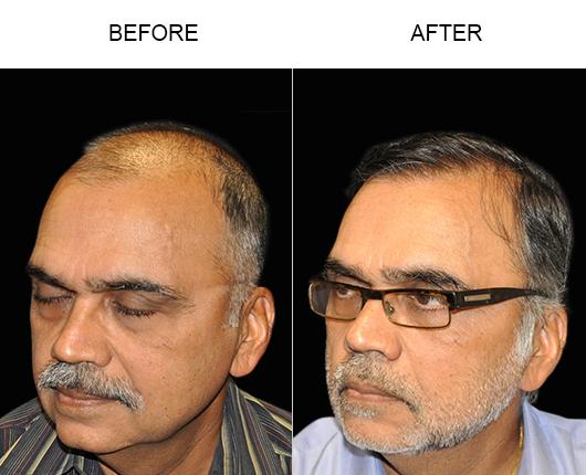 Hair Restoration Results In Florida