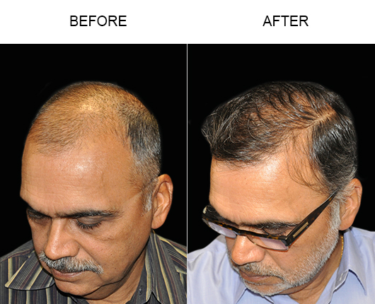 Before And After Hair Restoration In Florida