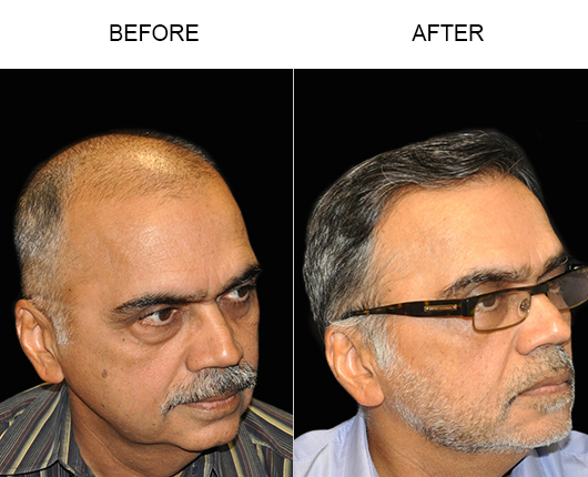 Before & After Hair Restoration In Florida
