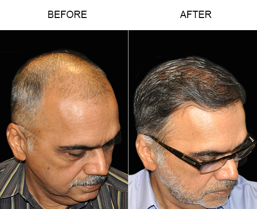 Hair Restoration Surgery Before And After