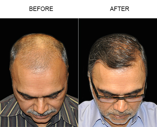 Hair Restoration Surgery Results