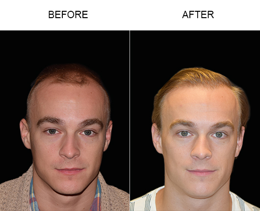Before And After Hair Restoration Surgery