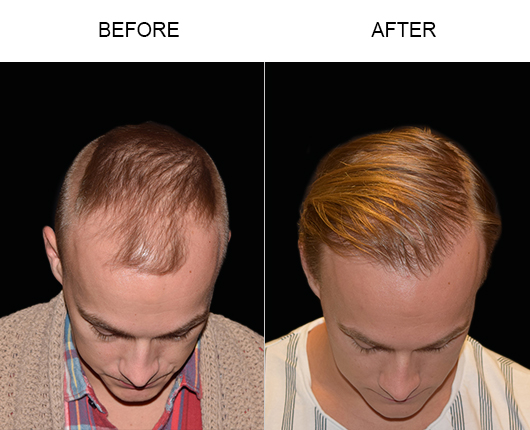 Before & After Hair Restoration Surgery