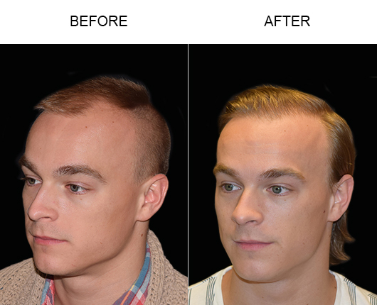 Hair Restoration Surgery Before And After In Florida