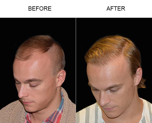 Hair Restoration Surgery Before & After In Florida