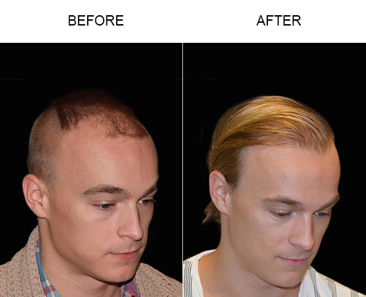 Before And After Hair Restoration Surgery In Florida