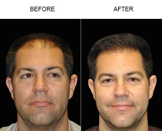 Hair Restoration Before & After Image