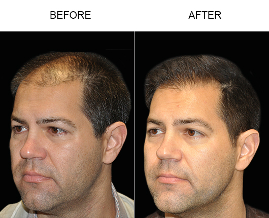 Image Of Hair Restoration Results