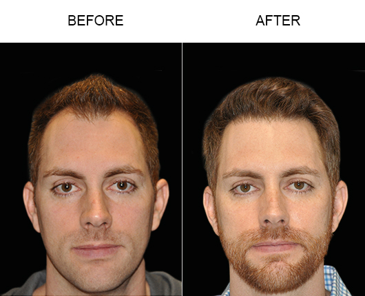 Hair Restoration Before & After Image In Florida