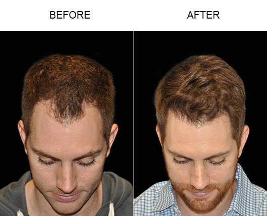 Image Of Hair Restoration Results In Florida