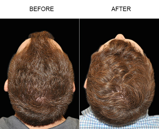 Before And After Image Of Hair Restoration In Florida