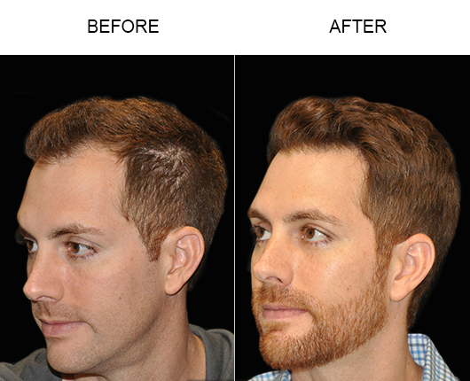 Before & After Image Of Hair Restoration In Florida