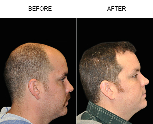 Hair Restoration Surgery Before & After Image