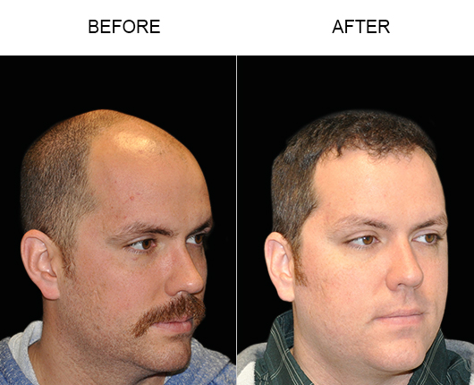 Image Of Hair Restoration Surgery Results