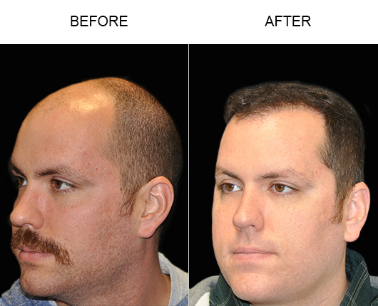 Hair Restoration Surgery Before And After Image In Florida