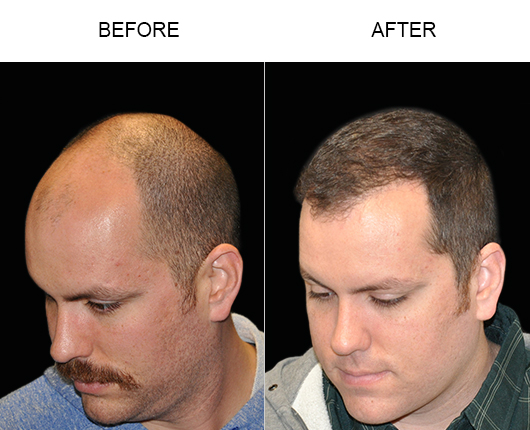 Hair Restoration Surgery Before & After Image In Florida