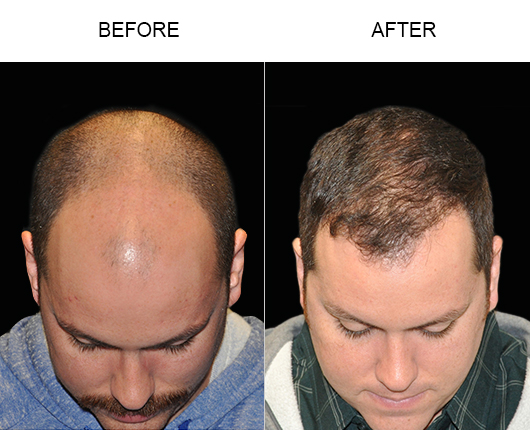 Image Of Hair Restoration Surgery Results In Florida