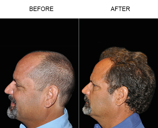 Before & After Image Of Hair Restoration Surgery In Florida