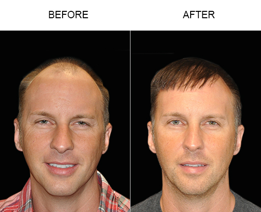 Hair Restoration Before & After Photo