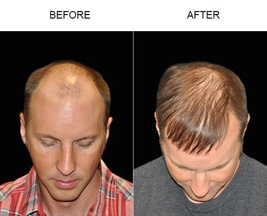 Photo Of Hair Restoration Results