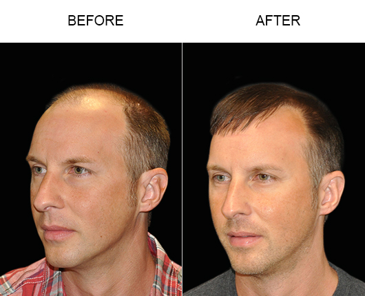 Before & After Photo Of Hair Restoration